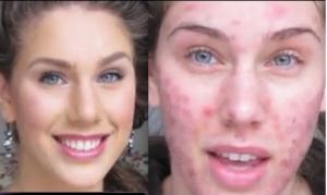 décodage biologique problèmes de peau8