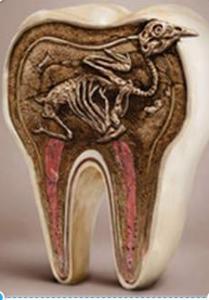 décodage dentaire 12