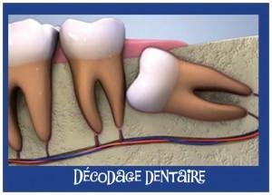 décodage dentaire 18